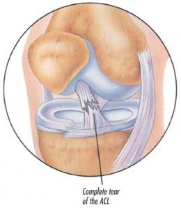 What's going on inside my knee!
